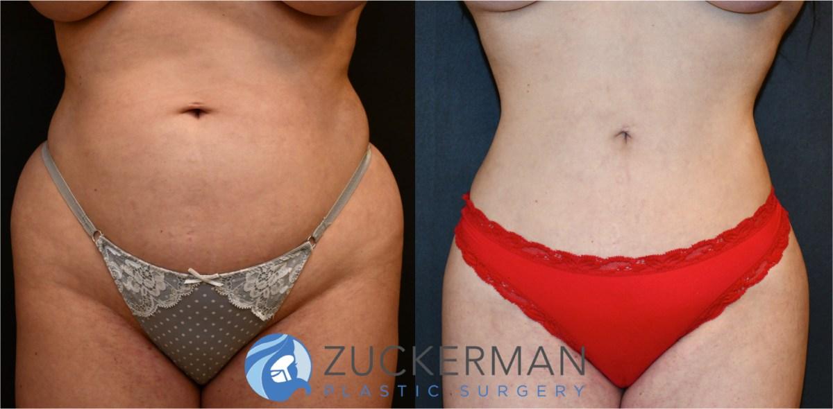 Weight Gain Right After Liposuction Surgery Blog Dandk