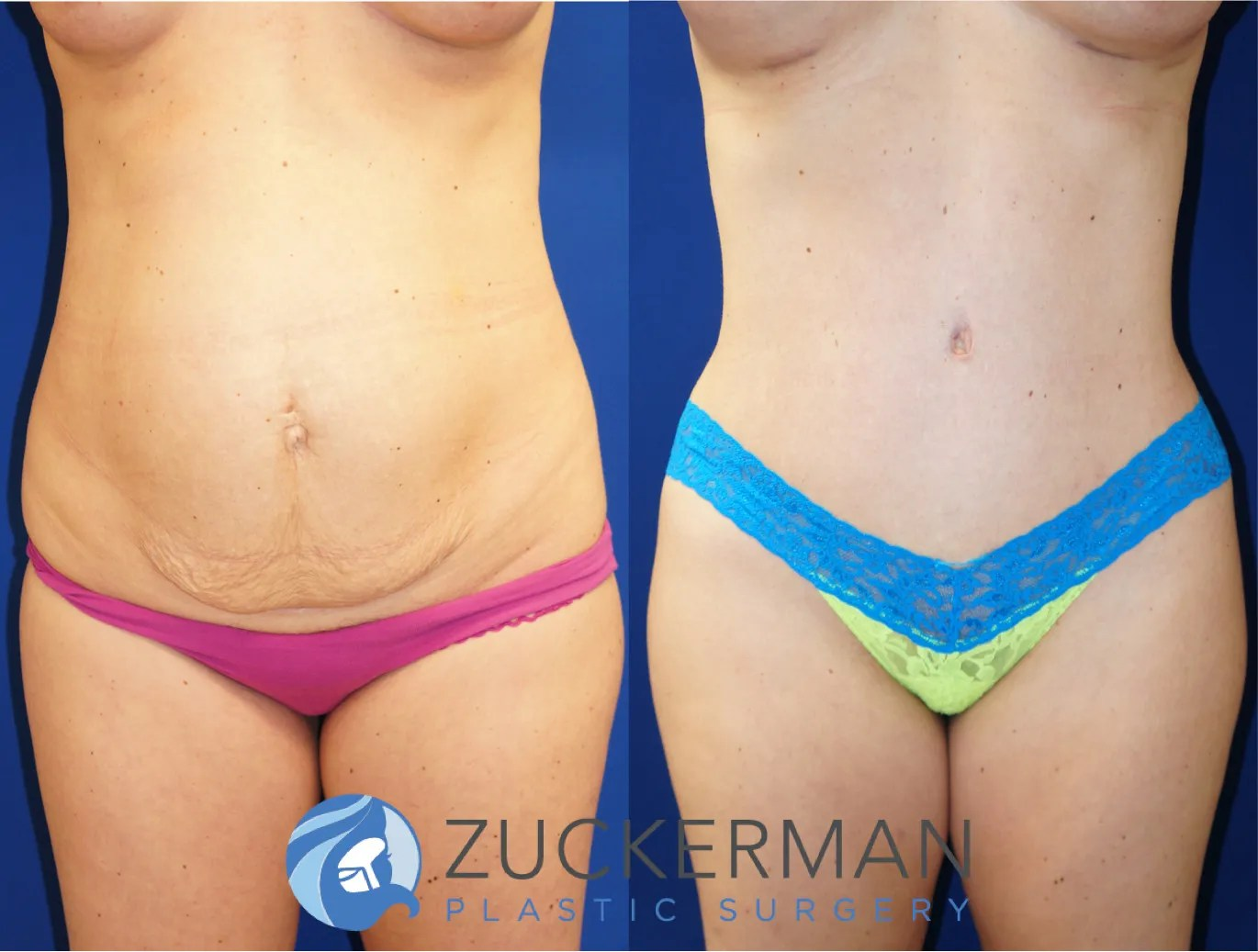 Tummy Tuck Abdominoplasty Nyc Top Ranked Zuckerman Plastic Surgery