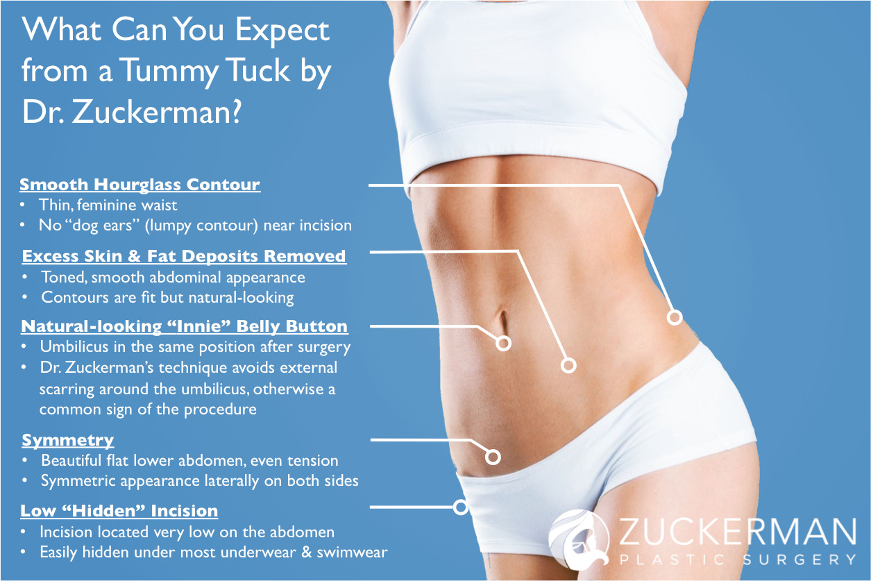 Am I A Candidate For Tummy Tuck Surgery
