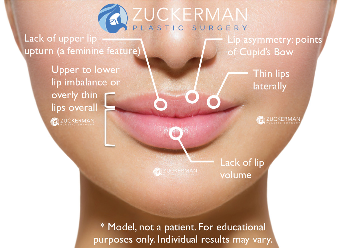lip augmentation, lip fillers, thin lips, lip asymmetry, cupid's bow, lack of lip volume, thin upper lip