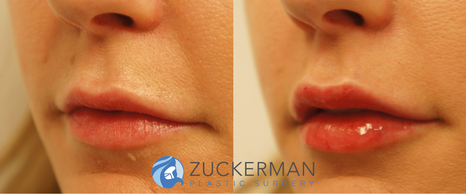 lip augmentation, fillers, before and after, featured 1, left oblique
