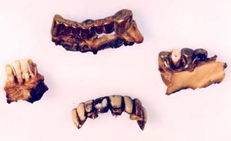 Die goldenen Zahnbrücken von Hitler
