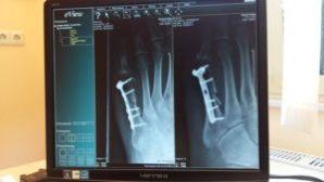 X-rays- bone fracture