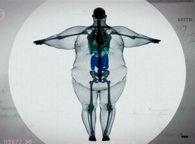 X-Ray of a 700 pound Man
