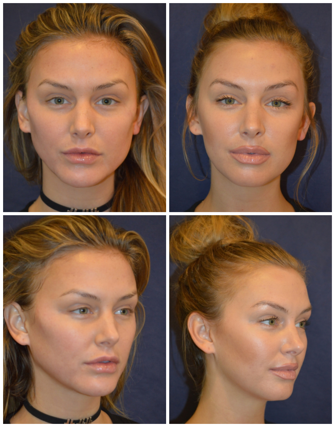 Lala Kent, before and after her treatments with Dr. Diamond.