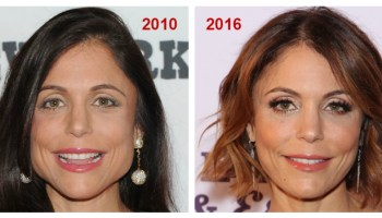 A Guide to Botox for the Chin: Addressing Dimples and Wrinkling