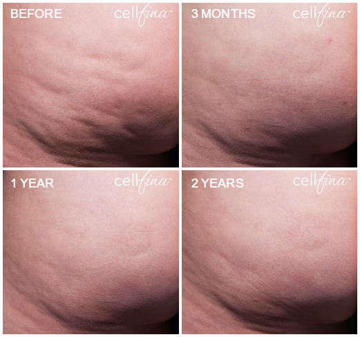 cellfina before and after