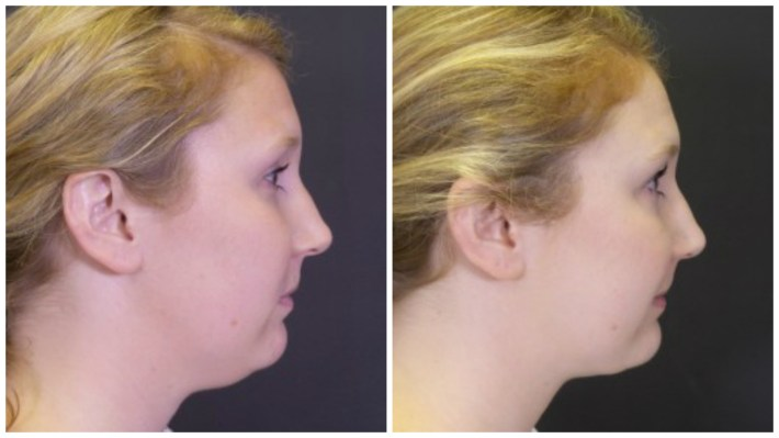 how to get rid of a double chin: 19 facts about chin & facial