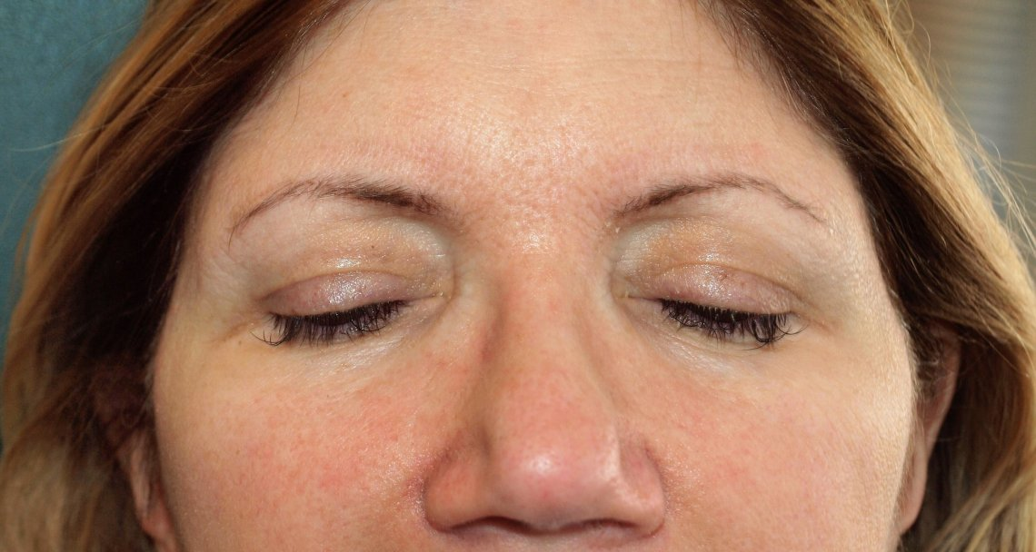 My in February, after my Sculptra treatments.