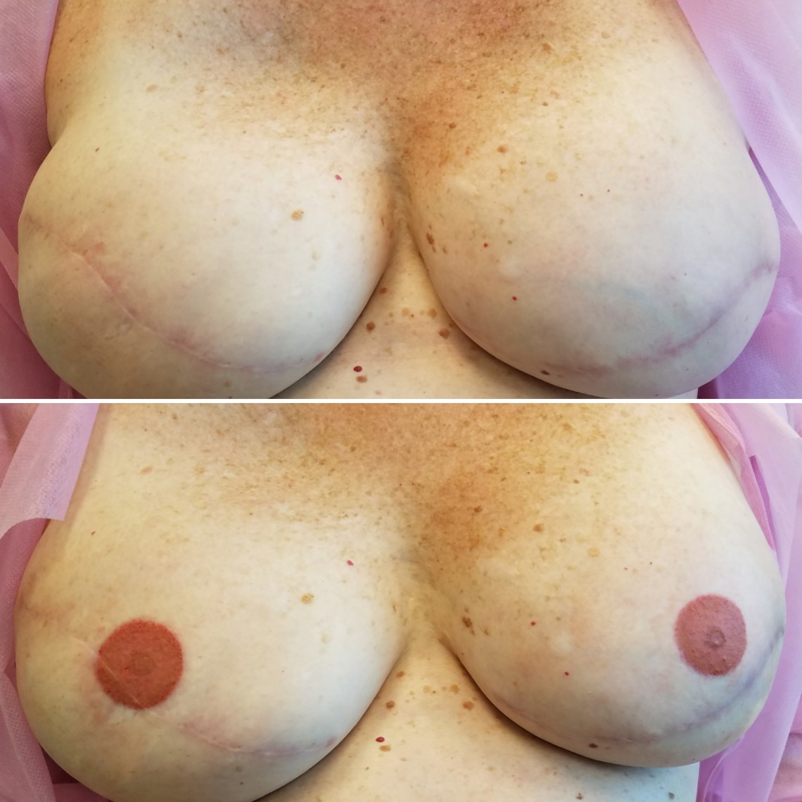 areola tattoo before and after
