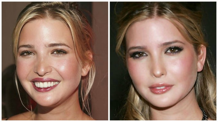 the 'ivanka effect' on cosmetic surgery: a new beauty standard?