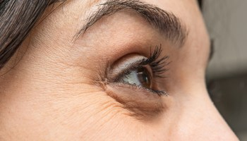 Eyelid Ptosis: Causes, Types, Diagnosis, and Surgery