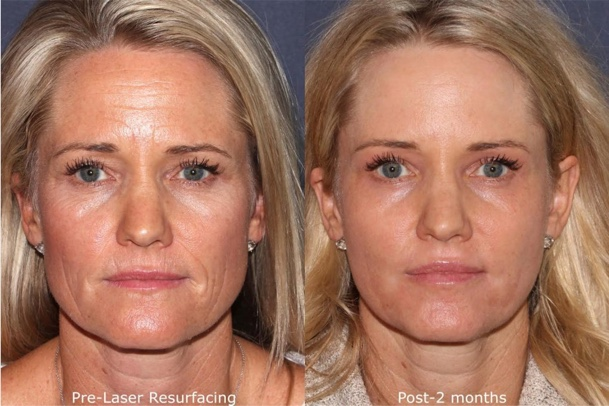 Laser Skin Resurfacing Before And After Recovery And Cost