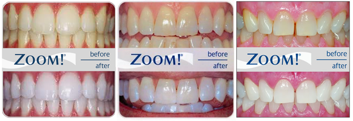 Zoom Teeth Whitening Procedure Review Side Effects And Cost