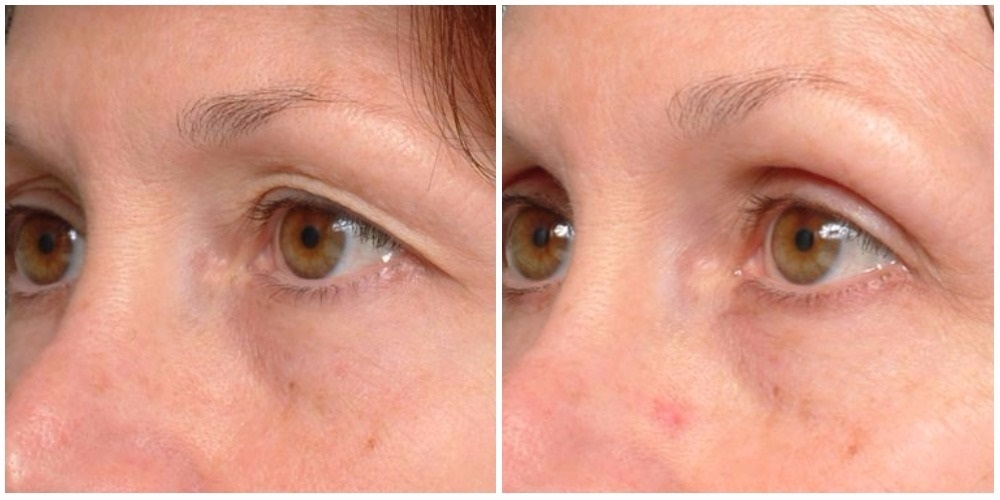 eyes by thermage cost | Amtmakeup co