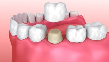 What Is a Zirconia Dental Crown? Cost, Alternatives, Pros
