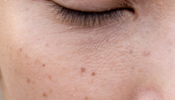 What Is Hydroquinone? How to Use This Popular Skin