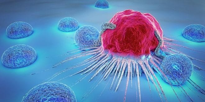 Artificial Intelligence is used to predict Cancer growth