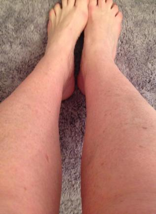 Legs before doesn't get paler than this