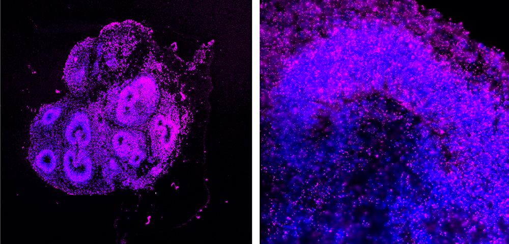inmersión en la realidad del ARN de las células