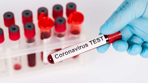 За добу на Харківщині зафіксували 66 нових випадків коронавірусу