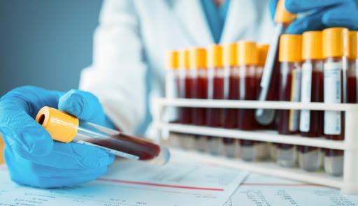 За добу у Харківській області зафіксували 23 нових випадки коронавірусу