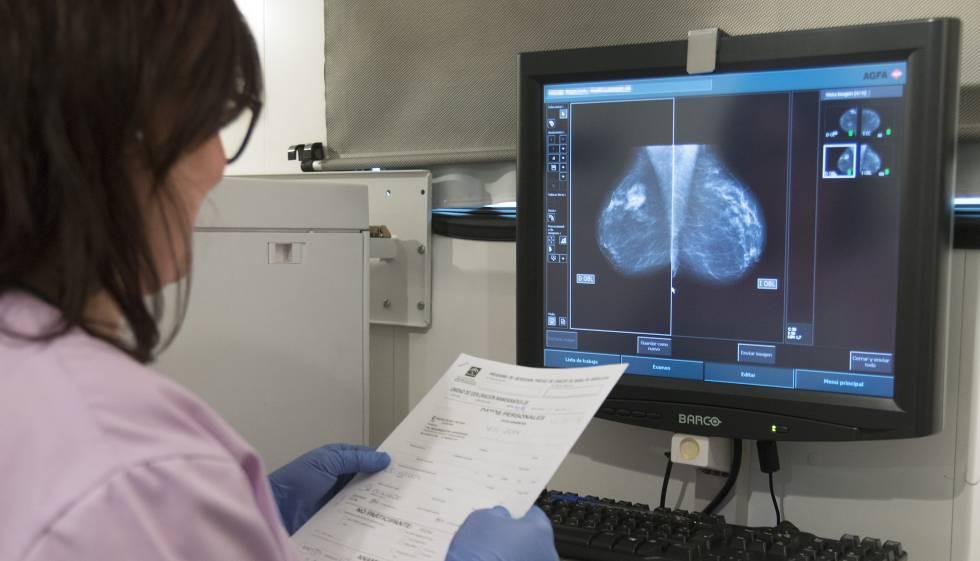 El día después para una superviviente de cáncer de mama | Ciencia | EL PAÍS