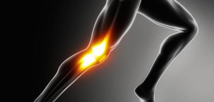 knee pain regenerative Xcell Medical Elyria