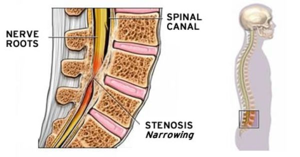 spinal stenosis treatments Xcell Medical Elyria
