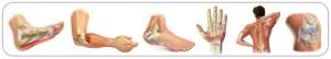 tendinitis treatments Xcell Medical Elyria