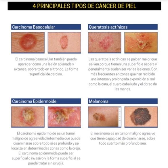 Tipos de problemas en la piel. Fuente: https://www.drlopezheras.com/2015/07/prevencion-diagnostico-cancer-piel.html