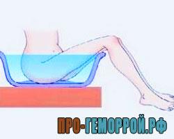 Восходящий душ при геморрое: механизм воздействия, показания и противопоказания, как проходит процедура, восходящий душ в домашних условиях