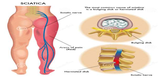 Home Remedies for Sciatica in Hindi