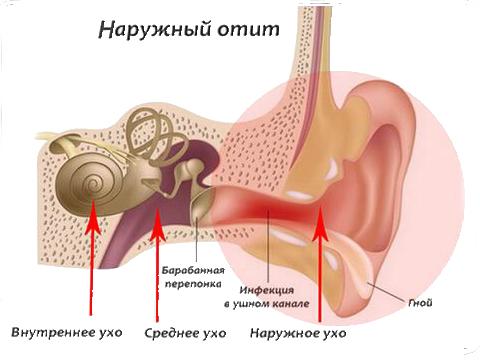 Антибиотики и ушные капли при гнойном отите - препараты и ...