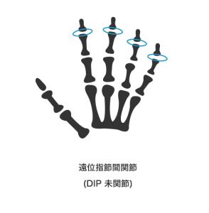 7号 1手の親指以外の手指の遠位指節間関節(第1関節)を屈伸することができなくなったもの