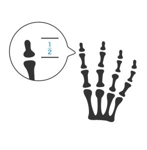 6号 1手の親指以外の手指の指骨の一部を失ったもの_2