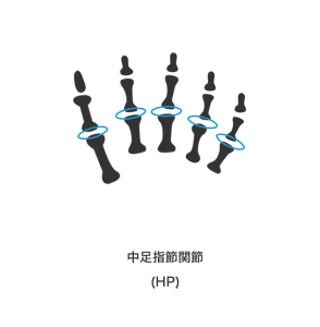 8号 1足の第3の足指以下の1又は2の足指の用を廃したもの★中足指節関節または近位指節間関節のみ表現