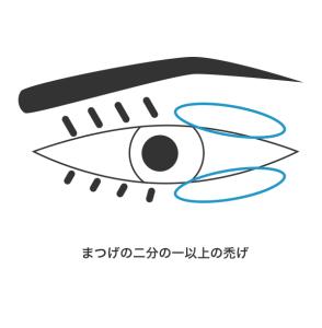 1号 1眼のまぶたの一部に欠損を残し又はまつげはげを残すもの_2