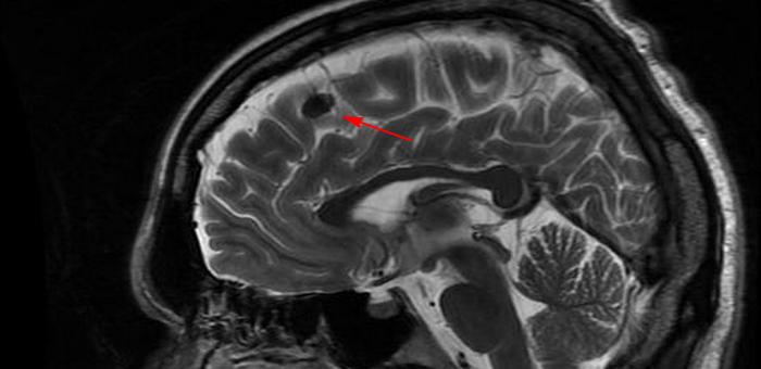 Картина очаговых изменений вещества мозга дисциркуляторного характера