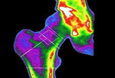 Изследване за костна плътност от остеопороза.com