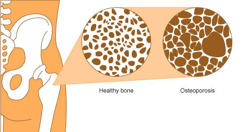 пробиотици за остеопороза