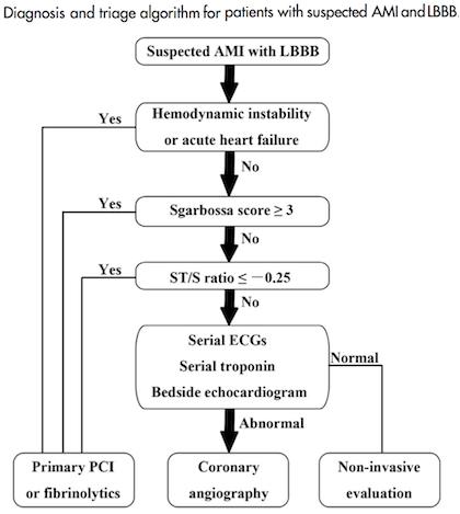AMI-LBBB-Algorithm