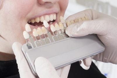 銀歯 セラミック 違い