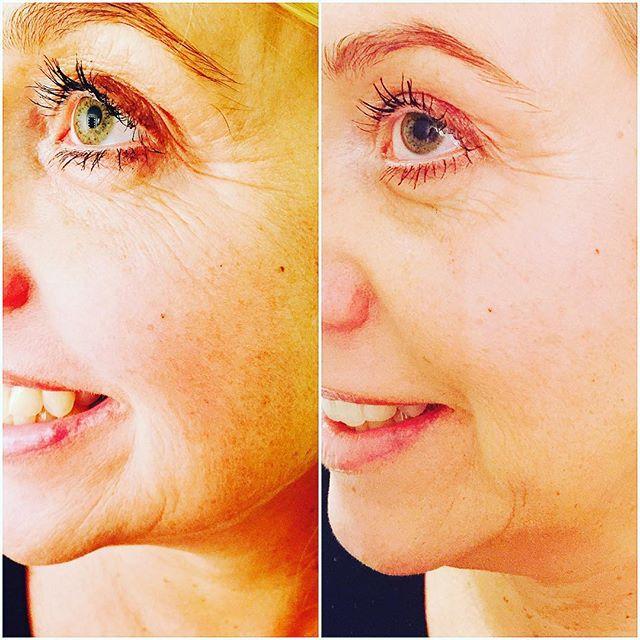 hudföryngring med laser fraxium 1550
