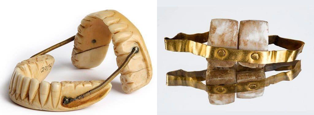 Древние зубные протезы