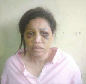 Presumen que mujer que se fugó del INOF está escondida en San Antonio de los Altos