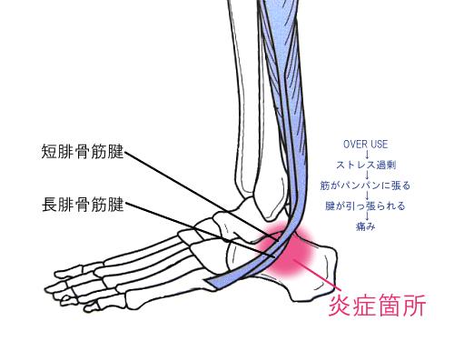 腓骨筋滑車症候群