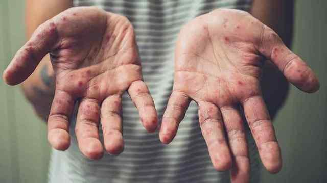 ВОЗ: Более 70% зараженных корью в Европе — украинцы
