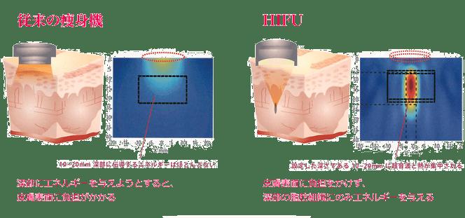 hifu-hikaku