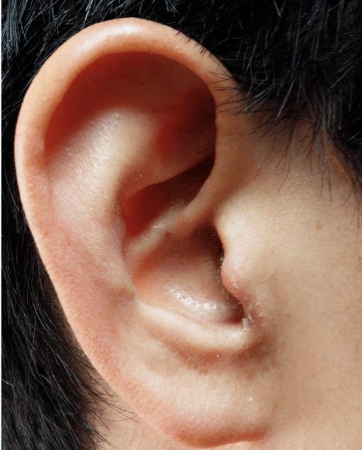 耳かゆい耳垢